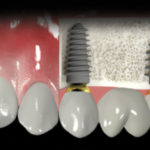 Implantes-dentales-un-cambio-decisivo.